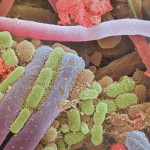 Placa Bacteriana, una película que no se puede ver.