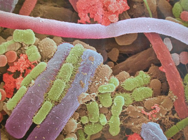 placa_bateriana_microscopio