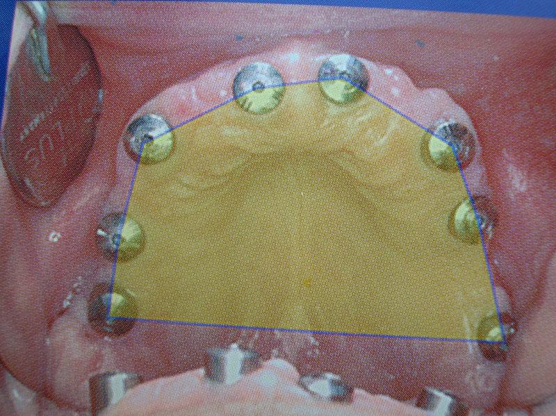curso-implantes-0051