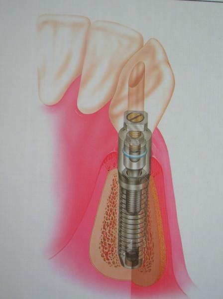 Esquema de un implante colocado y funcionando en la boca