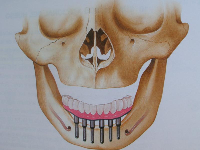 curso-implantes-049