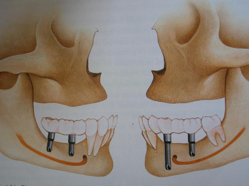 curso-implantes-060