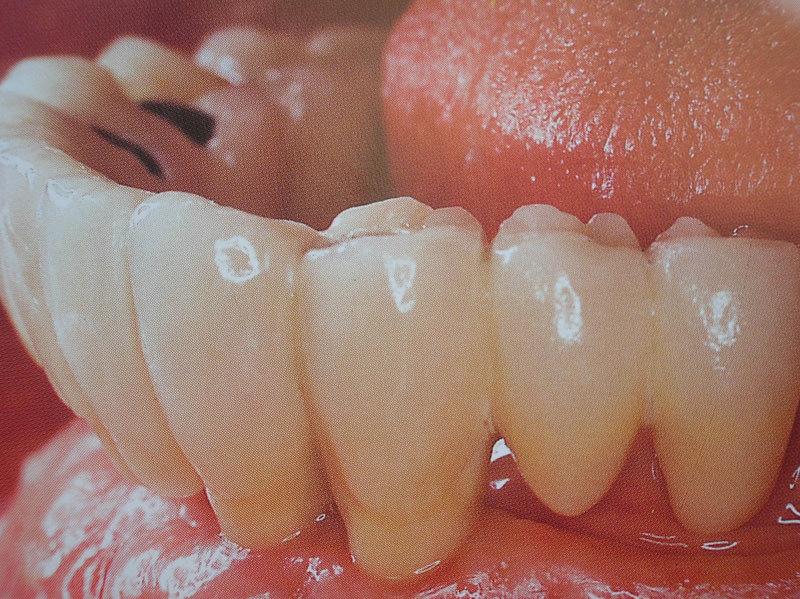 curso-implantes-070