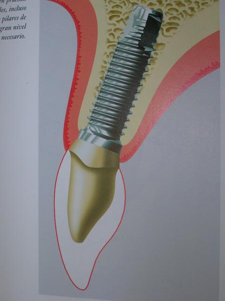endodoncia-018