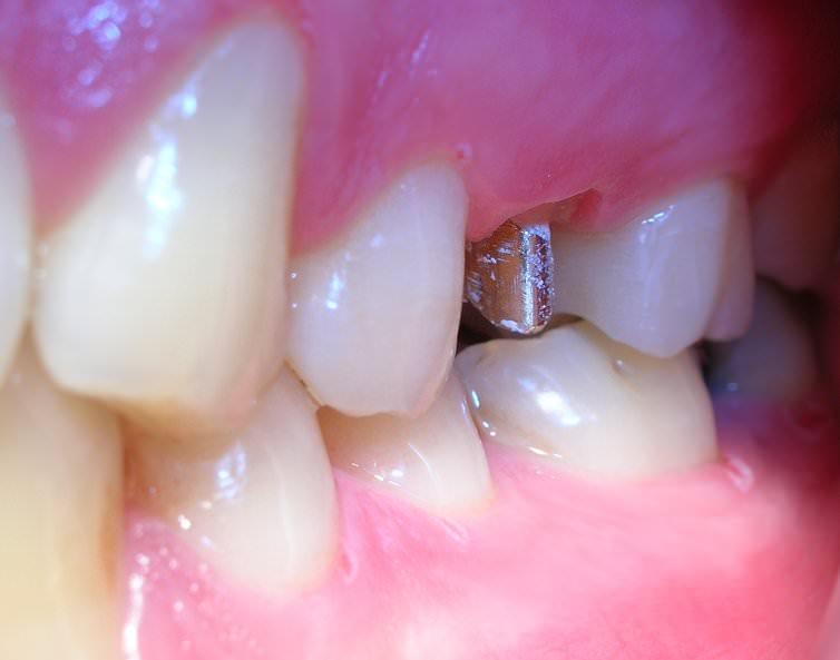 Dr.JuanBalboa-premolar1