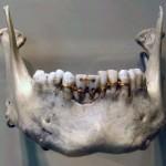 Odontología curiosa