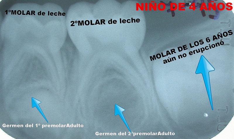 Germenes dentales