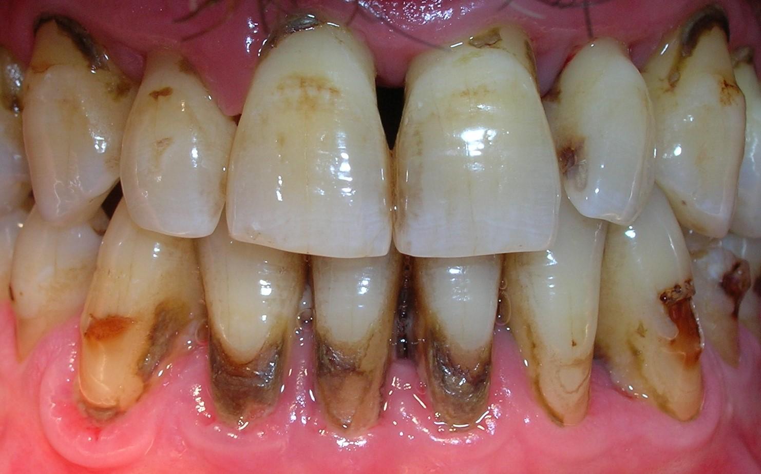 Cálculo dental, el sarro de los dientes - Dr. Juan Balboa