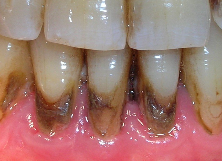 Sarro o cálculo dental