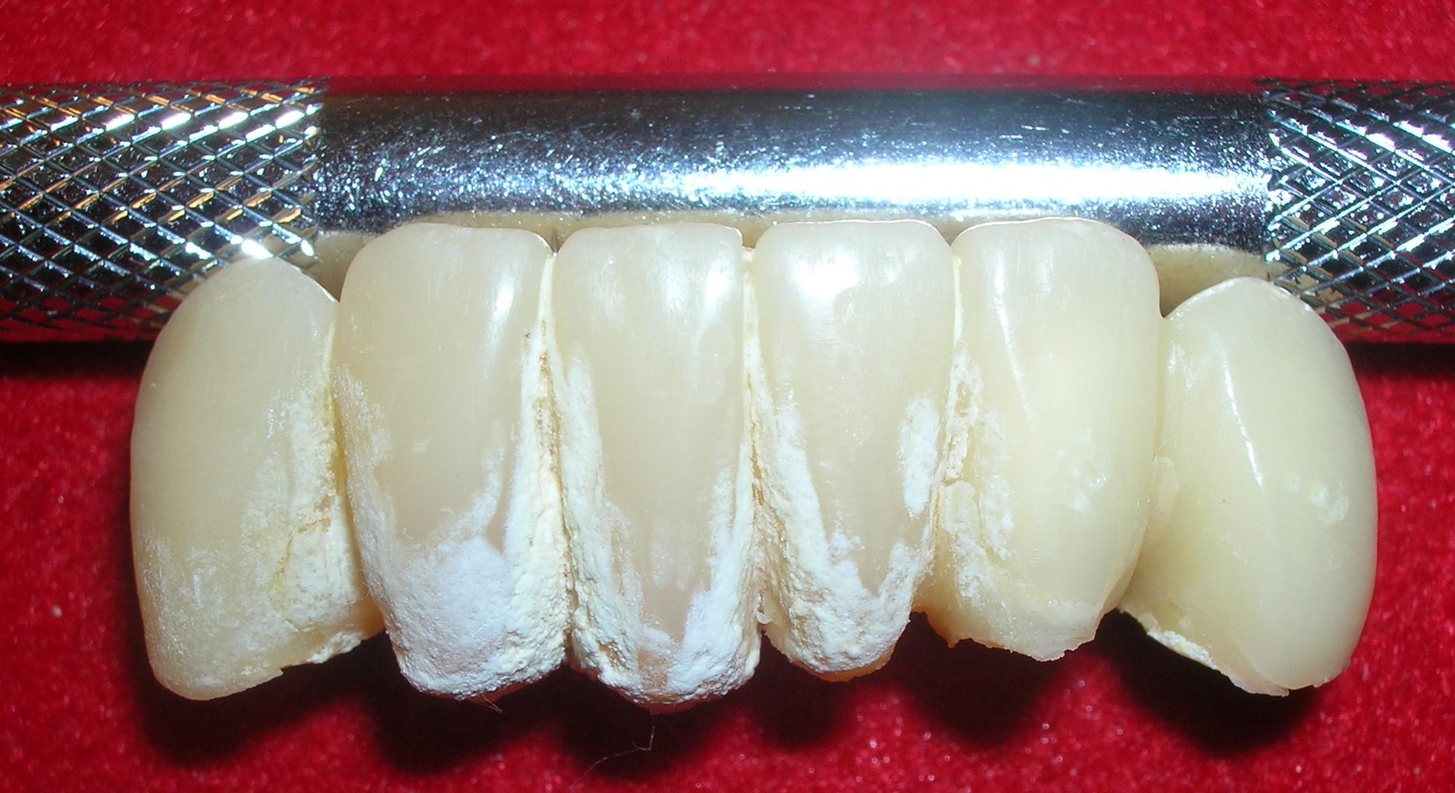 Cálculo dental sobre dientes provisionales